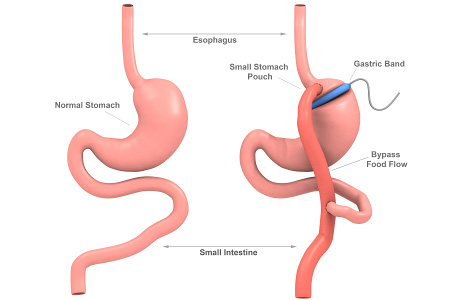 Energy expenditure increases after gastric bypass surgery